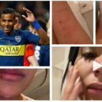 Estas son algunas de las imagenes que publicó Daniela Cortés en Instagram para acusar al volante colombiano de Boca Juniors, Sebastián Villa de violencia de género. (Foto: Instagram)